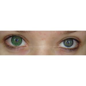 GBT Green
